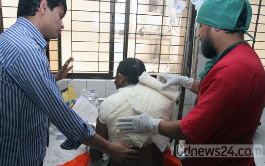 A victim of an arson attack at Dhaka's Jatrabarhi on Friday night during the BNP-led alliance's blockade is being treated at the Dhaka Medical College and Hospital. Photo: tanvir ahammed/ bdnews24.com