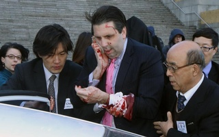 US Ambassador to South Korea Mark Lippert leaves after he was slashed in the face by an unidentified assailant at a public forum in central Seoul March 5, 2015. Lippert was attending a breakfast forum in central Seoul when a man attacked him, slashing him in the face, a witness at the event told Reuters.