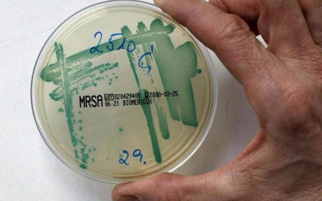 Protein From Human Breast Milk Could Destroy Antibiotic -3476