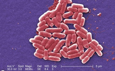 The mcr-1 plasmid-borne colistin resistance gene has been found primarily in Escherichia coli, pictured. Reuters