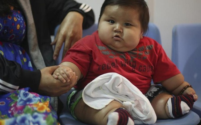 Eight-month-old Santiago Mendoza sits at a clinic for the obese in Bogota, Colombia, Mar 19 ,2014. Reuters