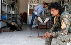 A Syrian Democratic Forces fighter sit as medics treat his comrades injured by sniper fired by Islamic State militants in a field hospital in Raqqa, Syria. Reuters