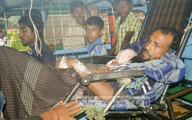 A Rohingya man, shot in his arm during fresh violences in Myanmar, crossed the border into Bangladesh. Photo taken on Saturday from refugee camp in Bangladesh's Cox's Bazar. bdnews24.com