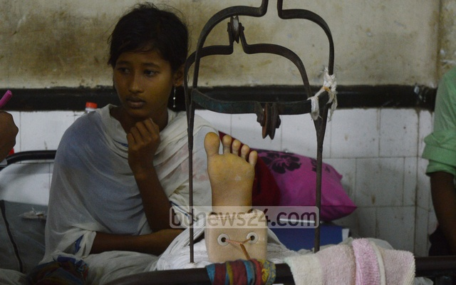 Teenager Umme Salma, who was shot in her left leg while fleeing to Bangladesh, is undergoing treatment at CMCH. Photo taken on Monday.