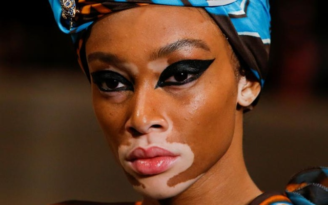 Model Winnie Harlow presents creations from Marc Jacobs Spring/Summer 2018 collection. Reuters
