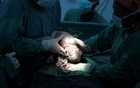 A baby is delivered through a Caesarean section in the labour and delivery unit at the Escuela hospital in Tegucigalpa. REUTERS
