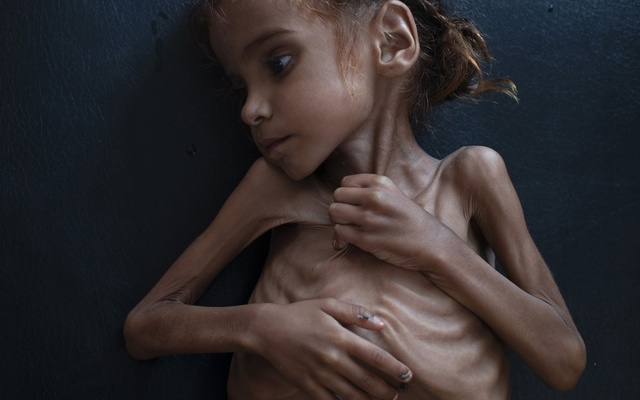 Amal Hussain, 7, lies in a UNICEF-run clinic in Aslam, Yemen, Oct 18, 2018. Images of the acutely malnourished child brought the Yemeni war's human cost into focus; many readers were devastated to learn that Amal died a few days later. The New York Times