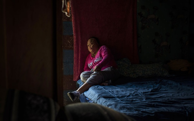 A young survivor of the February 2017 fire at a youth shelter rests at her home near Guatemala City on Oct 30, 2018. She has burns over 95 percent of her body and hardly goes outside anymore to avoid the stares and teasing from other children. The New York Times