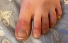 What is 'COVID toe'? Maybe a strange sign of coronavirus infection