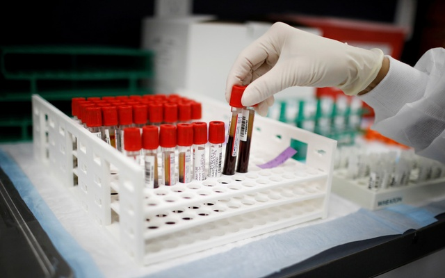 A health worker takes test tubes with plasma and blood samples after a separation process in a centrifuge during a coronavirus disease (COVID-19) vaccination study at the Research Centers of America, in Hollywood, Florida, US, Sept 24, 2020. REUTERS