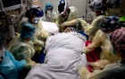 Staff prepare to turn Edwin Garcia prone to help him breathe in the COVID-19 medical Intensive Care Unit at Houston Methodist Hospital, in Houston on July 15, 2020. The New York Times