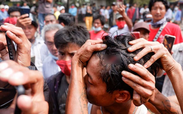 A man shows an injury after the police fired rubber bullets during protests against the military coup, in Mandalay, Myanmar, Feb 20, 2021. REUTERS