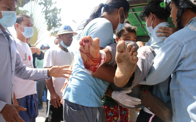 A wounded protester is carried amid protests against the military coup in Dawei, Myanmar Feb 28, 2021 in this picture obtained from social media. REUTERS