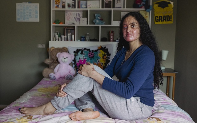Nafiah Ikram, who still suffers from painful burns from an unexplained acid attack outside her home, in Elmont, NY, Mar 17, 2021. Ikram, 21, nearly died in the attack outside her Long Island home. The attacker is at large, and the motive remains a mystery. Sara Naomi Lewkowicz/The New York Times