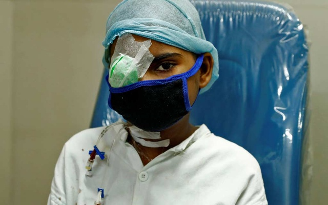 Sanika, 15, sits during a follow-up consultation inside a hospital as she recovers after losing her eye upon contracting Mucormycosis, also known as black fungus, in Mumbai, India, Jun 29, 2021. REUTERS