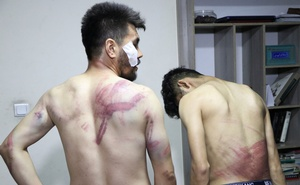 Journalists show their injuries after being beaten by the Taliban in Kabul, Afghanistan September 8, 2021 in this picture obtained from social media. Etilaatroz/via REUTERS
