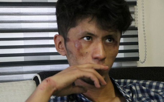 An injured journalist looks on after being beaten by the Taliban in Kabul, Afghanistan September 8, 2021 in this picture obtained from social media. Etilaatroz/via REUTERS