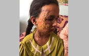 Asma, 8, who was burned by a tear-gas canister thrown by American forces while she and her family waited to get inside the Kabul airport in an undated photo. The story Asma echoes the heartbreak and heroism of the 20-year American misadventure in Afghanistan. The New York Times